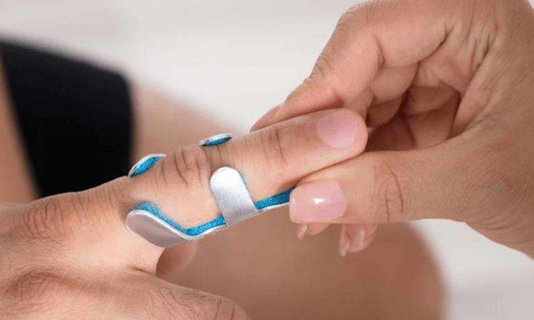 How To Fix A Mallet Finger Safety Guide